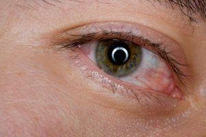 сухо око възпаление на окото