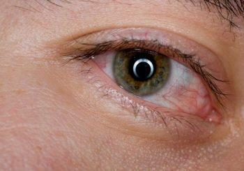 Сърбеж и сълзене на очите - какво помага?