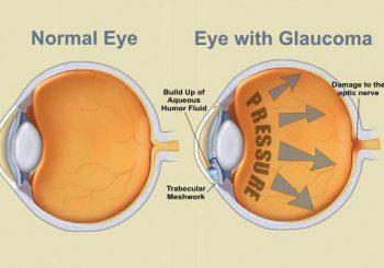 Изненада: Нитратите помагат срещу глаукома!