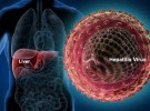 Нова апаратура за диагноза на хепатит С във ВМА