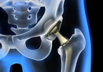 Как да живеем с протеза на тазобедрена става