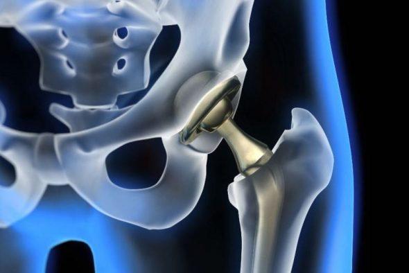 ендопротеза протеза на става