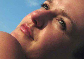 Газовете от колите виновни за петната по лицето при жените