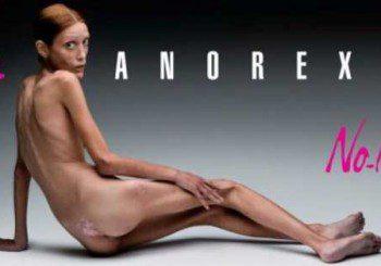 Анорексията се причинявала от бактериална инфекция