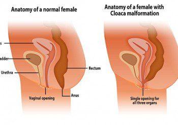 Жена забременя след анален секс