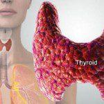 щитовидна жлеза възли симптоми