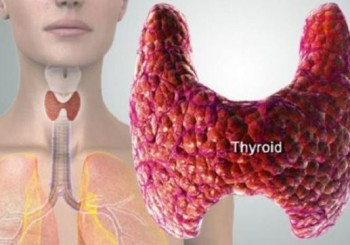Кога при гуша има възли на щитовидната жлеза