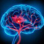 инсулт мозъчен удар