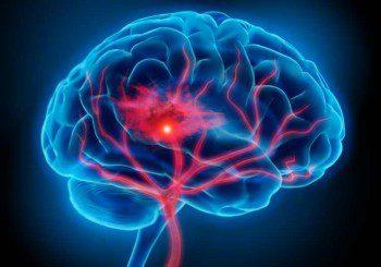 Аспиринът пази от нов инсулт, ако се вземе веднага след първия