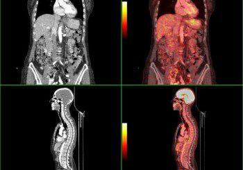 Нов метод за терапия на костни метастази при рак на простатата