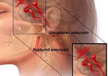 Аневризмата е като балонче по дължината на кръвоносния съд