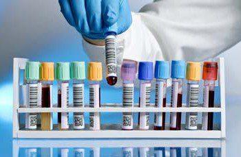 Хомоцистеин - аминокиселина, която качва риска за инсулт и инфаркт