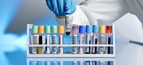 лаборатория кръвни изследвания хомоцистеин