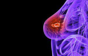 рак на гърдата херцептин