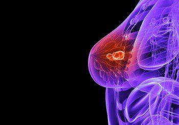 Храненето може да повлияе на лечението при метастазирал рак на гърдата