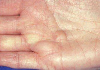 Болестта на Дюпуитрен започва с възелчета по дланите и свити пръсти