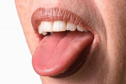 Какво казва за здравето жълтият, кафяв или космат език