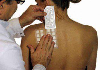 Безплатни прегледи за контактен дерматит в 5 града