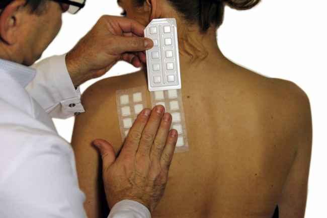 тест на кожата при алергия дерматит екзема
