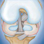 скъсан менискус операция meniskus