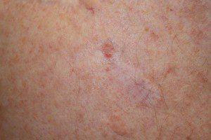 базално клетъчен карцином рак на кожата