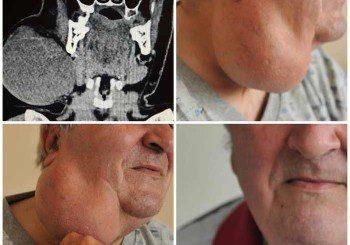 20-сантиметров тумор махнаха от шията на мъж във ВМА