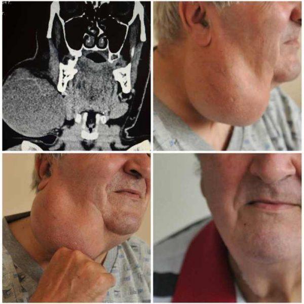 тумор на шията, проф. Венцислав Цветков