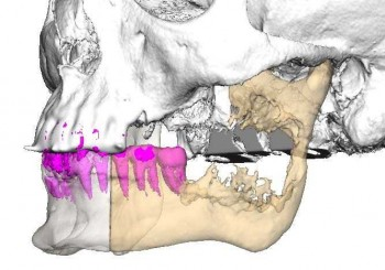 Уникално в България: оперираха лице с принтиран 3D имплант