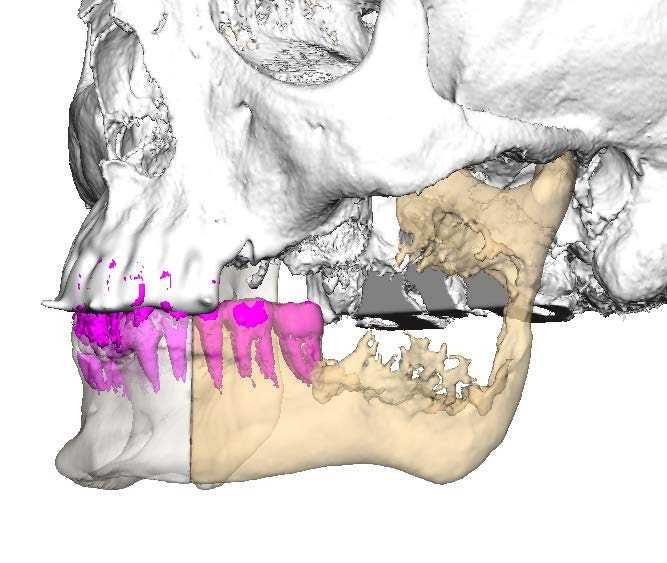 3D имплант