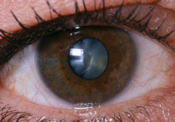 Колко дълго да чакаме катарактата, за да се оперираме?