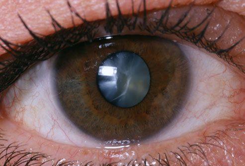 катаракта перде на окото операция