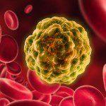 левкемия рак на кръвта