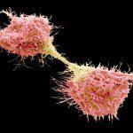 ракови клетки метастази