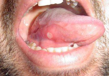10 природни средства, които успешно лекуват афти в устата