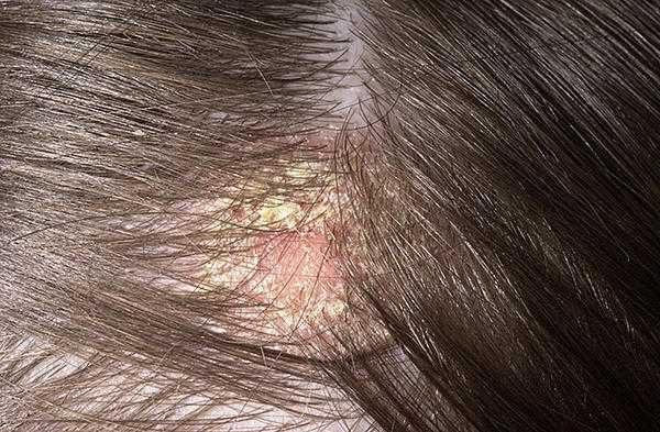 себореен дерматит