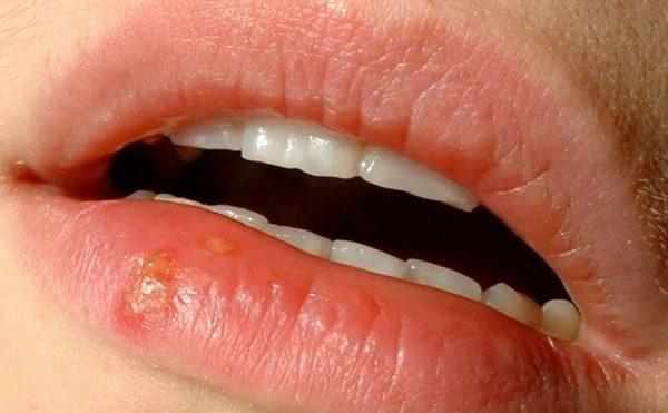 херпес на устната
