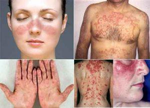 лупус симптоми признаци обрив