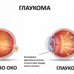 глаукома причини