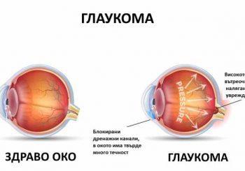 Глаукомата може да се окаже автоимунно заболяване