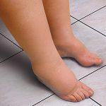 лимфедем подуване на краката