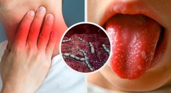 скарлатина стрептококова инфекция