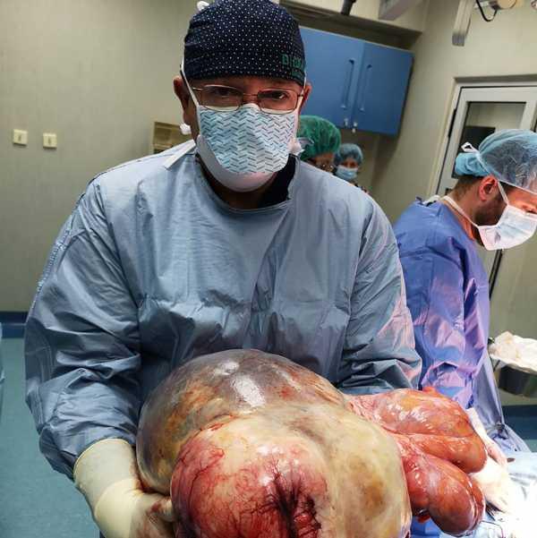 тумор в корема ВМА