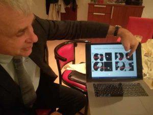 проф. Валтер Клепетко рак на белия дроб