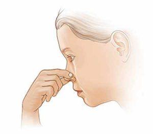 кървене от носа