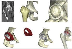 имплант при болест на Бехтерев