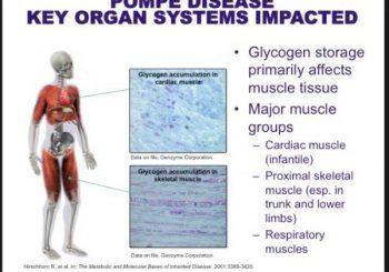 Необичайна мускулна слабост може да е болест на Помпе