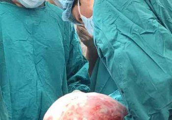 Извадиха 12 кг тумор на яйчника от жена на 41 години
