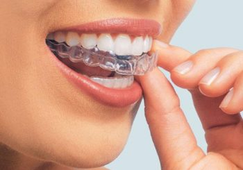 Вредно ли е избелването на зъбите?