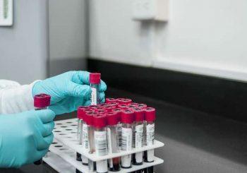Нов кръвен тест хваща 50 вида рак