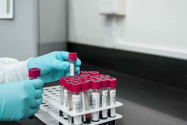 изследване на кръв тест за рак